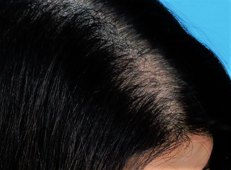 hongos caspa cuero cabelludo