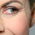6 Recetas naturales para la prevención temprana de arrugas