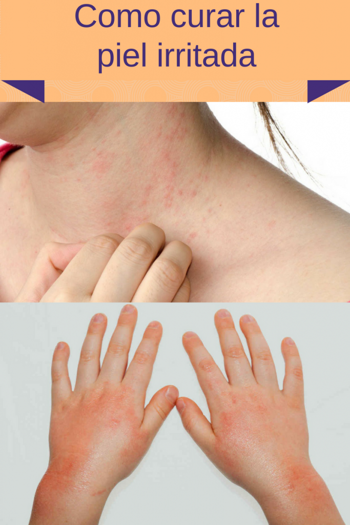 Remedios Naturales para calmar la piel irritada