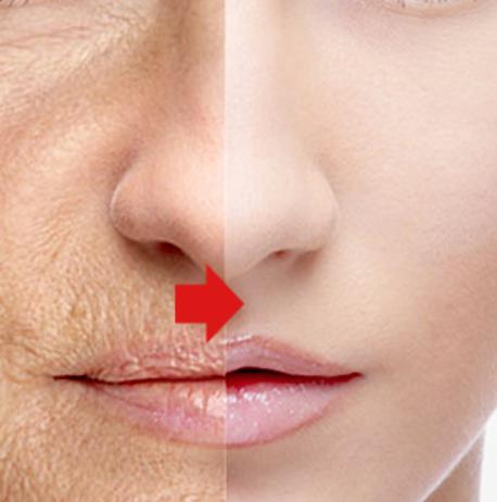 Proceso post-operatario del lifting facial