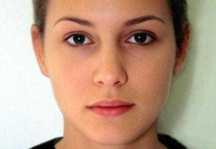 Resultado de imagen para piel normal